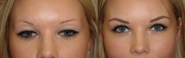 Antes e depois maquiagem definitiva nos olhos