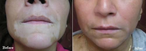 Micropigmentação para vitiligo antes e depois