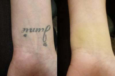 Produtos e maquiagem para tatuagem