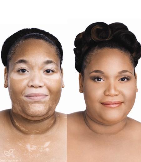 Dicas de maquiagem para vitiligo