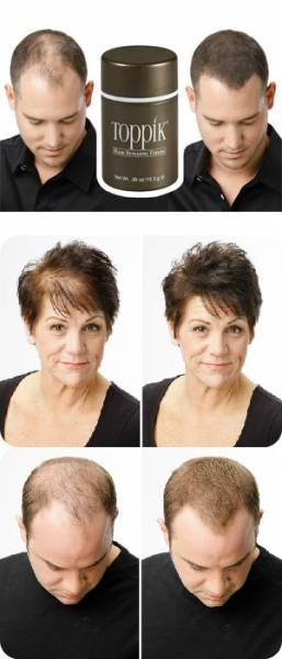ideal para quem tem pontos sem cabelo