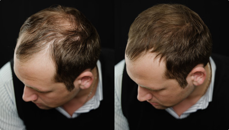 Toppik Jethair foto antes e depois