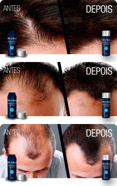 imagens resultados antes e depois Jet Hair