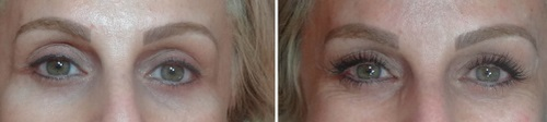 resultado antes e depois cílios alongados